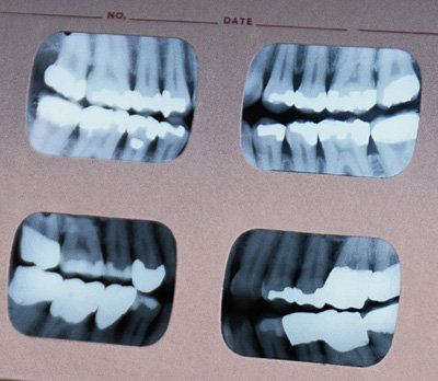 X-ray dental image