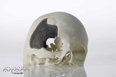 3D-printed skull implant