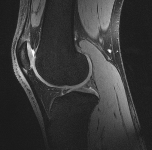 Scanning knees to reveal cartilage health in space and on Earth