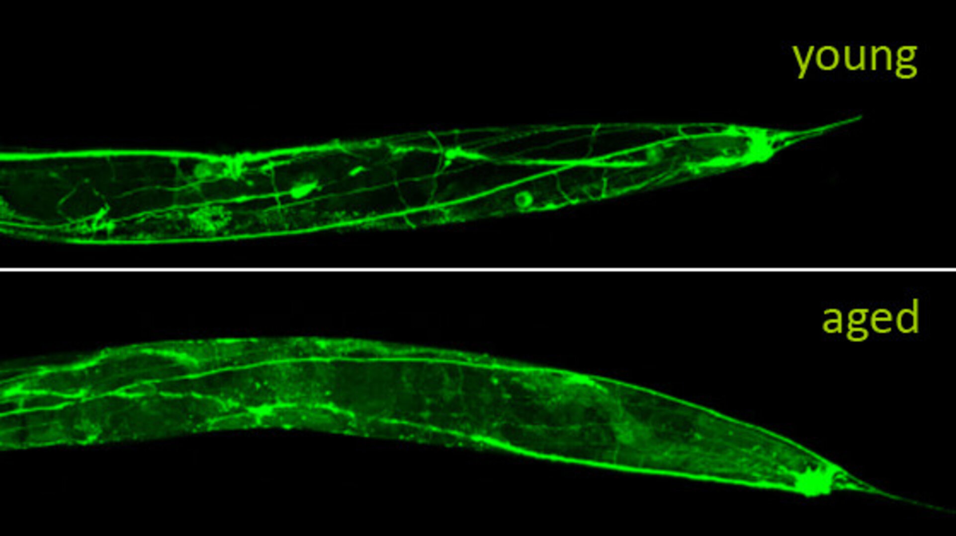 Neuronal deterioration of a worm as it ages