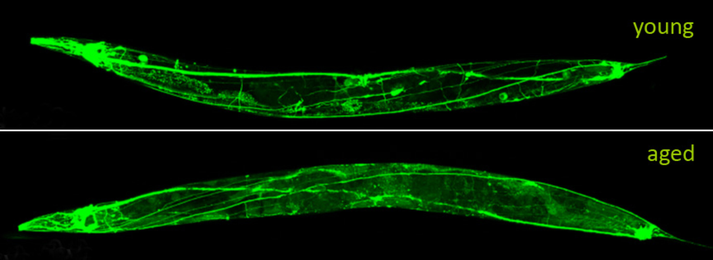 Neuronal deterioration of worm during ageing