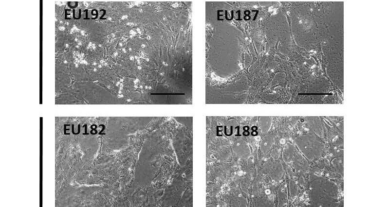 Immagini al microscopio delle cellule sperimentali in microgravità e sulla Terra